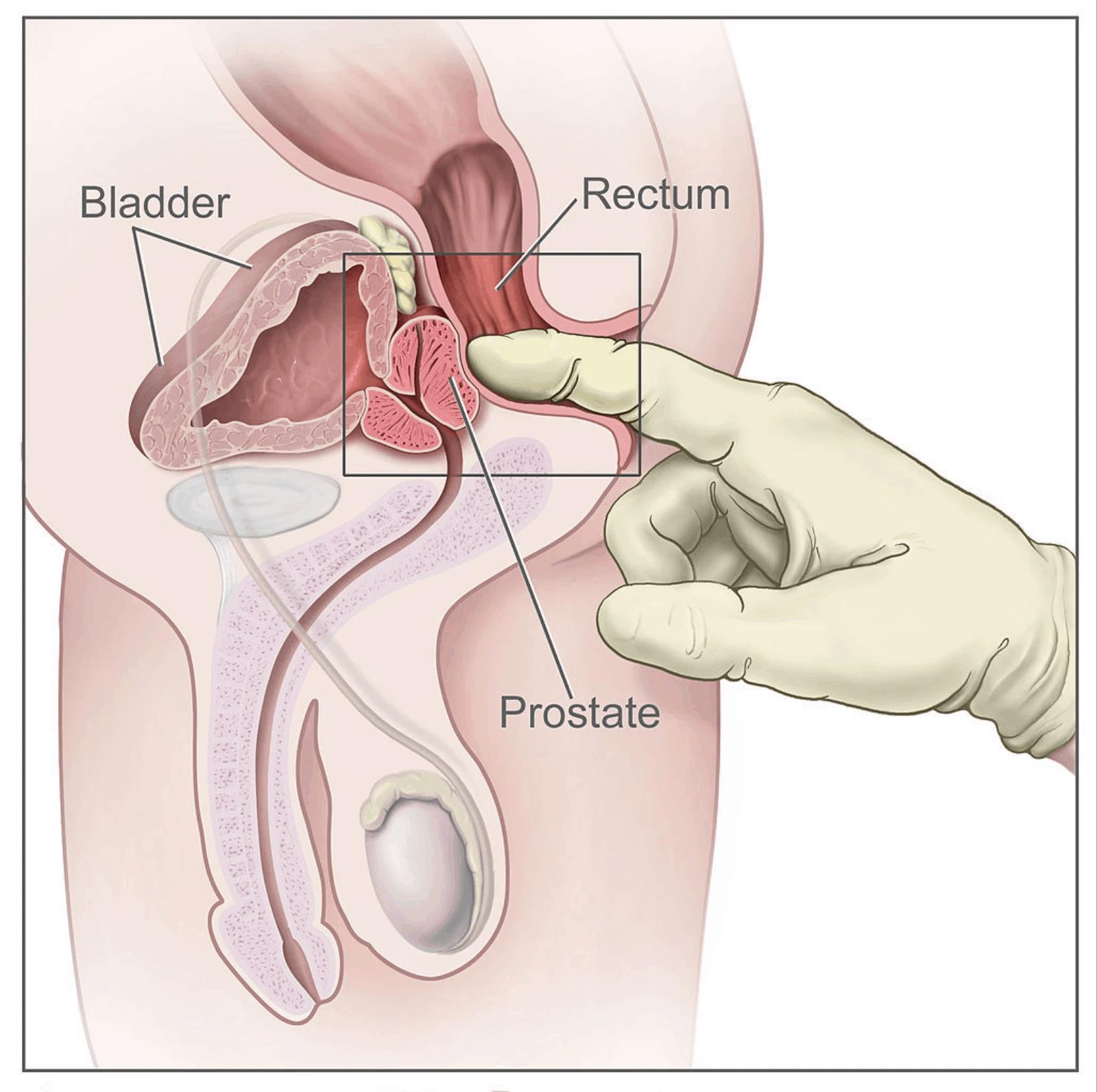Het anale orgasme voor hem: P-spot orgasme